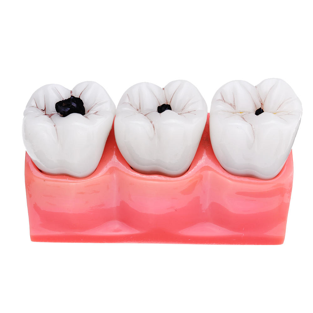 4X Detachable Human Dental Caries Teeth Tooth Decay Comparison Model Pathology Patient Education Medical Model