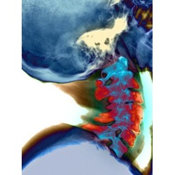 Poster: Medical's Arthritis In Neck, X-ray, 16x12in.